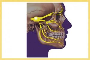 trigeminalneuralgia